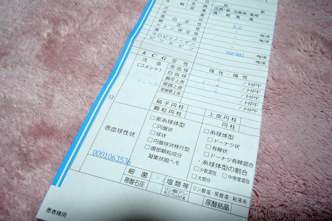 尿検査の結果表