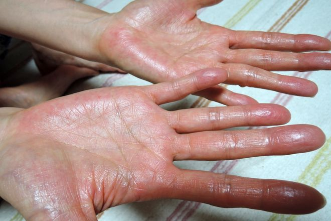 デトランスαを両方の手のひらに塗ります。