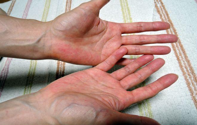 手のひらがさらさらになりました。