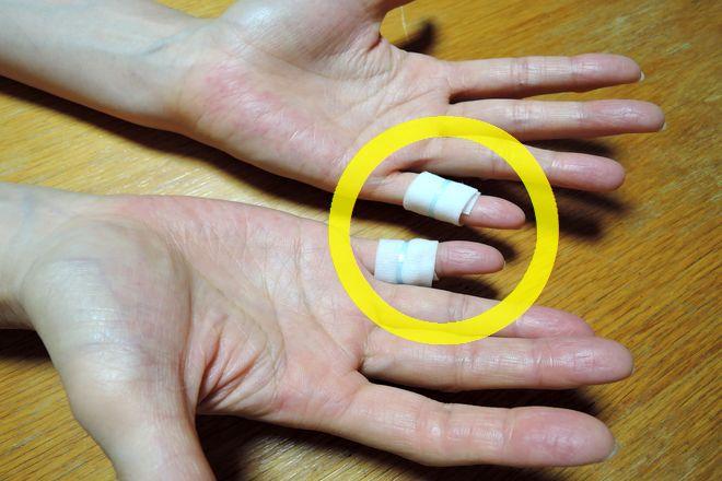 小指湿布で手汗を改善