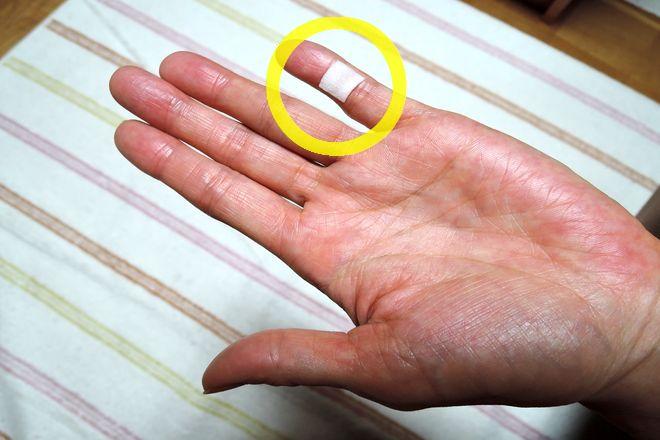 小指湿布は手のひら側の第一関節と第二関節の間に貼ります。