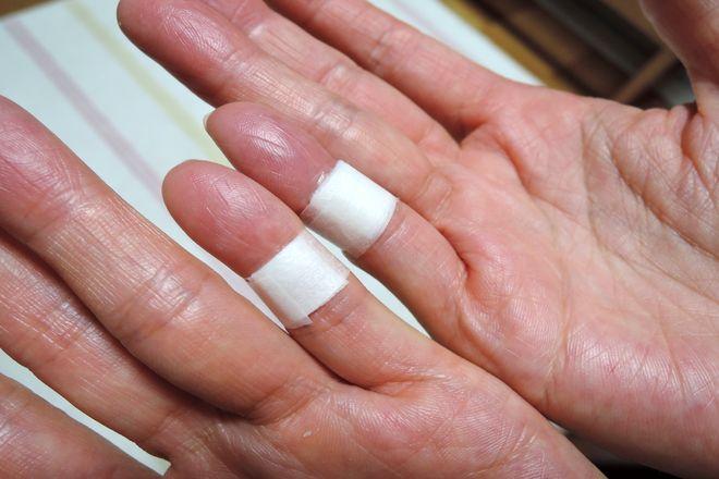 小指湿布(右手と両手)