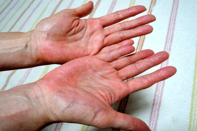 塩化アルミニウム液は寝る前に塗ってください。