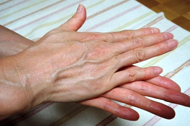 塩化アルミニウム液を両手で手のひらに塗り込みます。