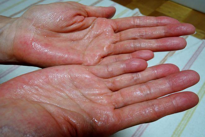 塩化アルミニウム液を手のひら全体に塗ります。