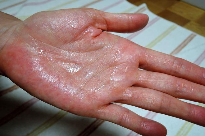塩化アルミニウム液を手のひら全体に染みこませました。