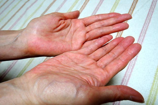 手のひらを乾かしたら一晩おきます。