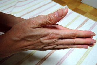 塩化アルミニウム液を手のひら全体に染みこませます。