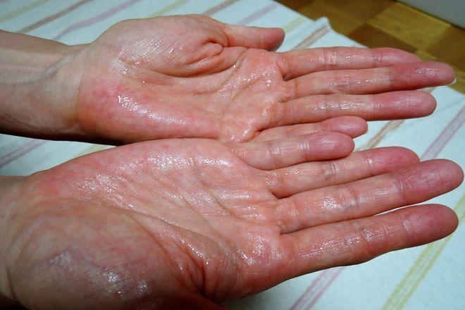 手のひらに塩化アルミニウムを二度塗りします。