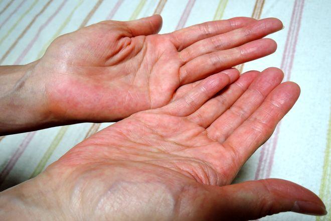 手のひらに塩化アルミニウムを塗って乾かします。
