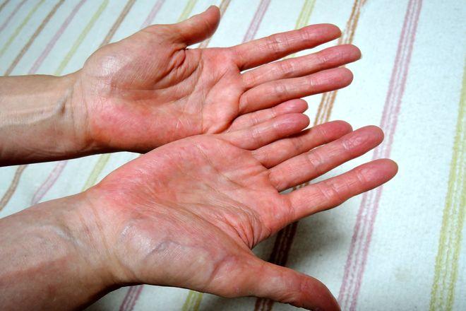 塩化アルミニウム液を塗る前に手を洗って乾かします。
