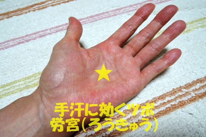 手汗に効くツボ|労宮(ろうきゅう)の位置と押し方を画像で解説