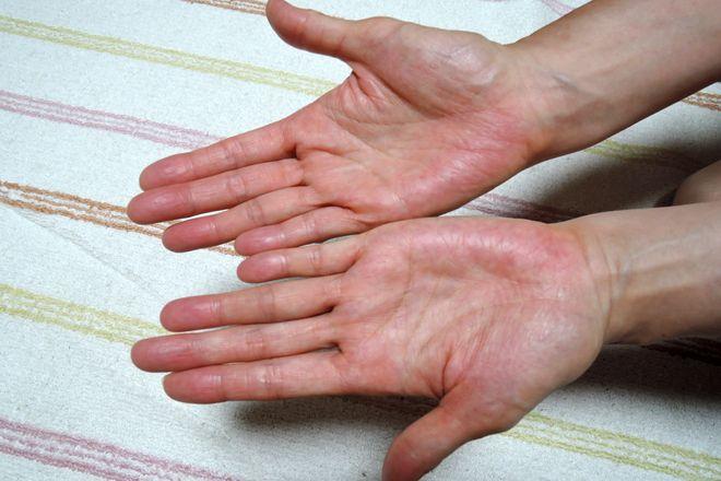ミョウバンスプレーで手汗を改善する