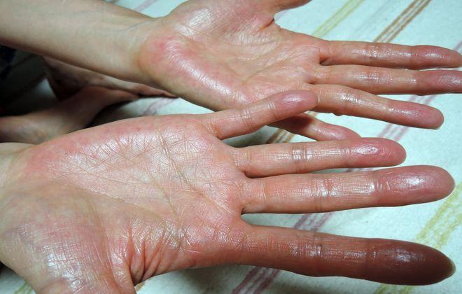 デトランスαを手のひらに塗ったあとはよく乾かします。