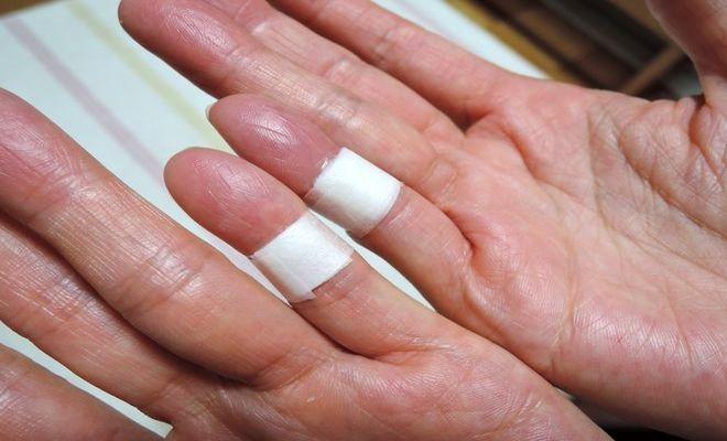 小指湿布の効能
